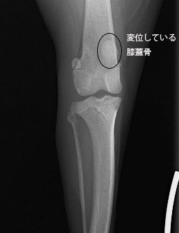 膝蓋骨内方脱臼